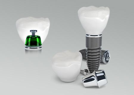 leczenie-implantologiczne-i-chirurgiczne_2