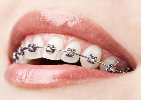 leczenie_ortodontyczne