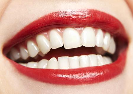 leczenie_periodontologiczne