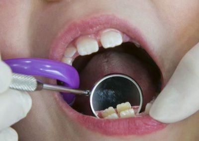 stomatologia dzuiecięca 5